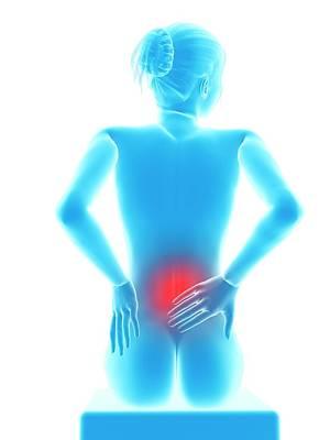 Back Pain Photograph - Human Back Pain by Sebastian Kaulitzki