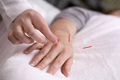 Healthcare And Medicine Photograph - Acupuncture by Science Stock Photography