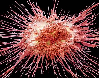 Human Body Photograph - Dendritic Cell by Steve Gschmeissner