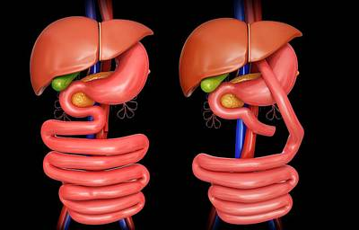 Internal Organs Photograph - Gastric Bypass by Pixologicstudio
