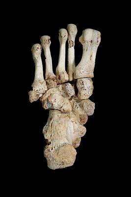 Homo Heidelbergensis Fossil Foot Bones Art Print by Javier Trueba/msf