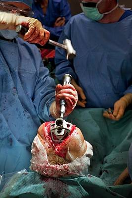 Hammer Photograph - Knee Replacement Surgery by Patrick Landmann