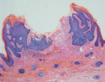 Light Micrograph Photograph - Skin Cancer by Steve Gschmeissner