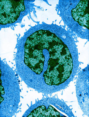 Photograph - Cancer Cells Tem by David M Phillips