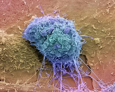 Cervical Cancer Cell Art Print