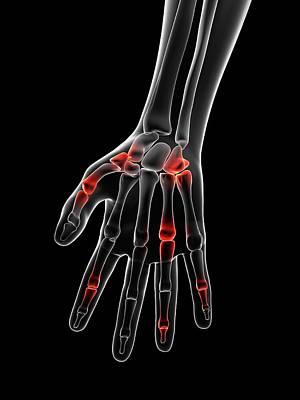 Human Joint Photograph - Human Finger Joints by Sebastian Kaulitzki