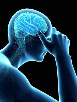 Internal Organs Photograph - Human Headache by Sebastian Kaulitzki