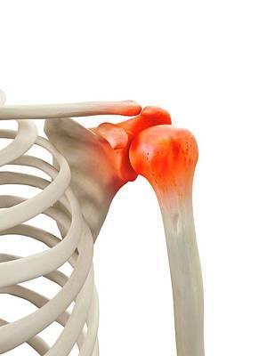 Human Shoulder Joint Art Print by Sciepro