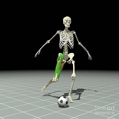 Kicking A Ball Art Print by Medical Images, Universal Images Group