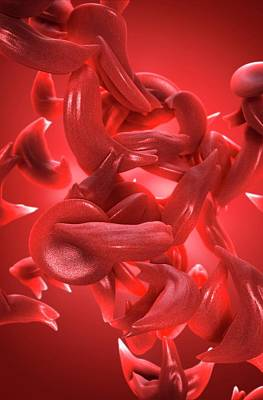 Sickle Cell Anaemia Art Print by Tim Vernon