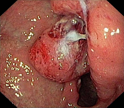Endoscopy Photograph - Stomach Cancer by Gastrolab