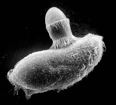 Photograph - Didinium Ingesting Paramecium, Sem by Greg Antipa