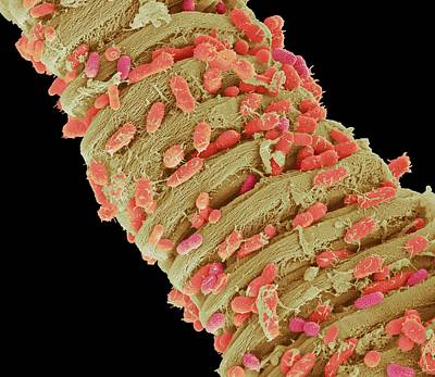 Fecal Photograph - Faecal Bacteria by Steve Gschmeissner