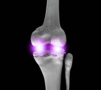Knee Joint Art Print by Science Artwork