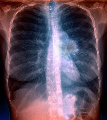 Lung Cancer Art Print by Zephyr/science Photo Library