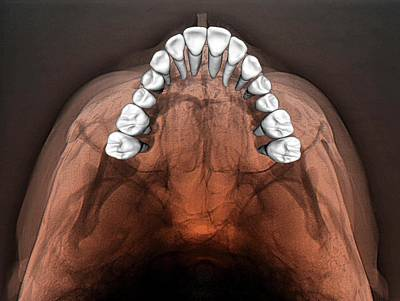 Third-oldest Photograph - Normal Teeth by Zephyr