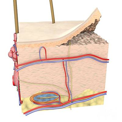 Cross-section Of The Skin Art Print by Medical Images, Universal Images Group