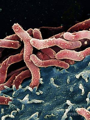 Campylobacter Pyloridis Photograph - Helicobacter Pylori Bacteria, Sem by Spl