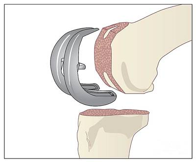 Knee Replacement, Artwork Art Print by Peter Gardiner