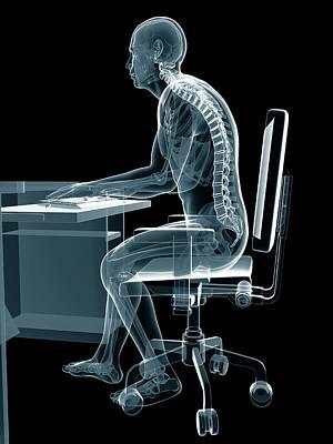 Person Sitting With Incorrect Posture Print by Sebastian Kaulitzki