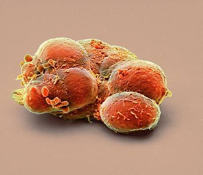 Biochemistry Photograph - Pluripotent Stem Cells by Steve Gschmeissner