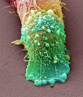Skin Cancer Cell Art Print by Steve Gschmeissner