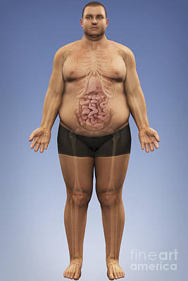 Male Organ Photograph - Obesity by Science Picture Co