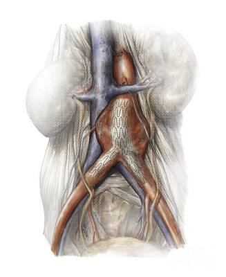 Aaa Photograph - Abdominal Aortic Aneurysm, Artwork by D&L Graphics
