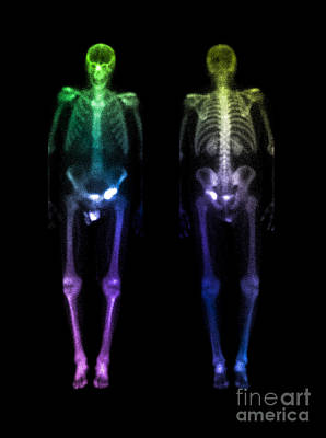 Photograph - Acetabular Fracture, Bone Scan by Living Art Enterprises