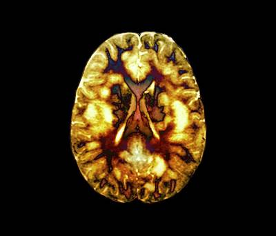 Acute Disseminated Encephalomyelitis Art Print