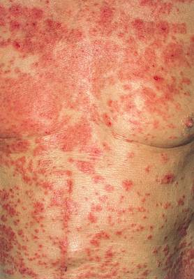 Torso Wall Art - Photograph - Acute Eczema On The Torso Of Alzheimer's Patient by Dr P. Marazzi/science Photo Library