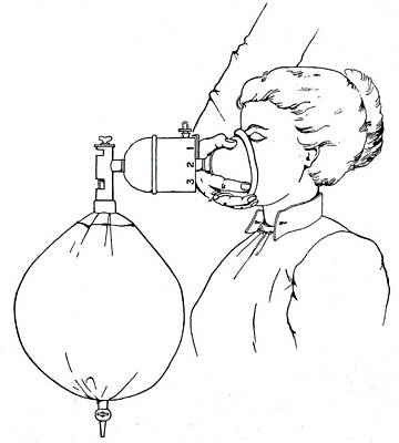 Administering Gas And Ether Print by Universal History Archive/uig