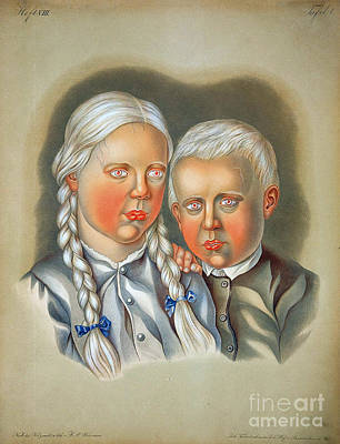 Photograph - Albino Children 19th Century by Science Source