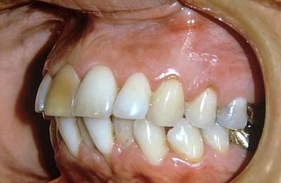 Bite Photograph - Alveolar Prognathism by Dr. J.p. Casteyde/cnri