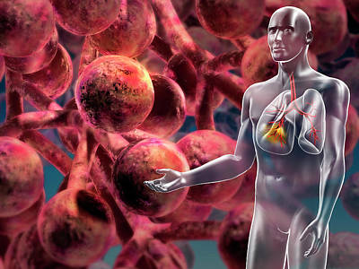 Alveoli In The Lung Art Print by Harvinder Singh