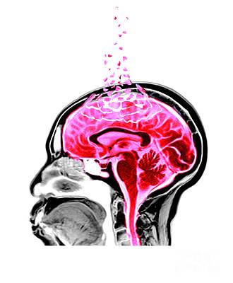 Mental Health Art Photograph - Alzheimers by Spencer Sutton