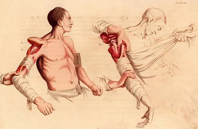 Amputation Of The Arm At The Shoulder Art Print