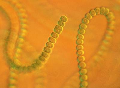 Algal Photograph - Anabaena Sp. by Clouds Hill Imaging Ltd