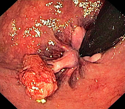 Anal Photograph - Anal Polyp by Gastrolab