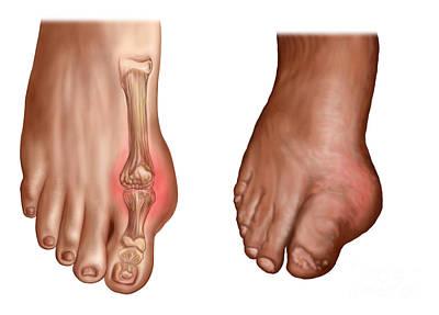 Human Joint Digital Art - Anatomy Of A Swollen Foot by Stocktrek Images