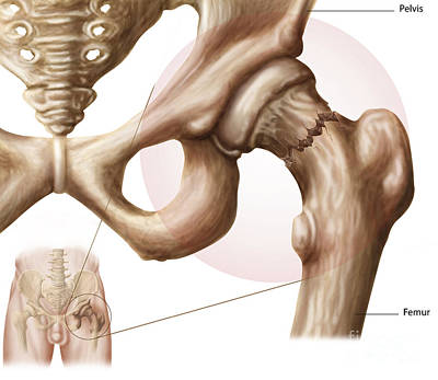 Human Joint Digital Art - Anatomy Of Hip Fracture by Stocktrek Images