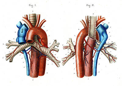 Airways Photograph - Aortic Arch by Collection Abecasis