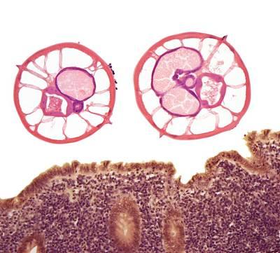 Appendicitis Due To Threadworm Infection Art Print