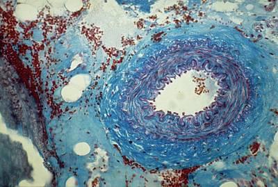 Arteriole Art Print by Overseas/collection Cnri/spl
