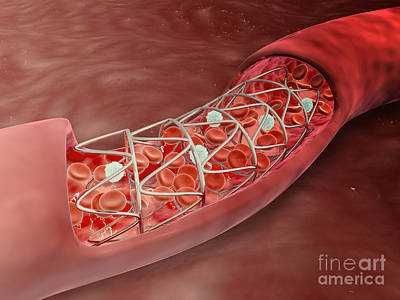 Wire-mesh Digital Art - Artery Cross-section With Blood Flow by Stocktrek Images