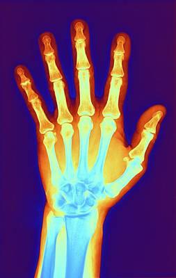 Hand Digital Art - Arthritic Hand, X-ray by Science Photo Library - Pasieka