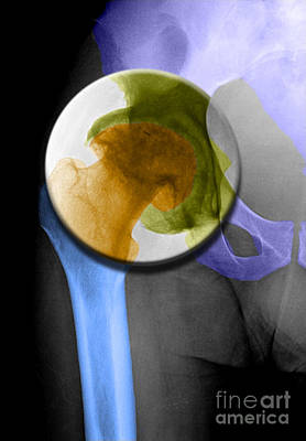 Photograph - Arthritic Hip by Living Art Enterprises, LLC