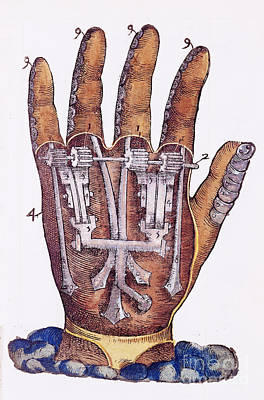Artificial Hand Designed By Ambroise Art Print by Wellcome Images