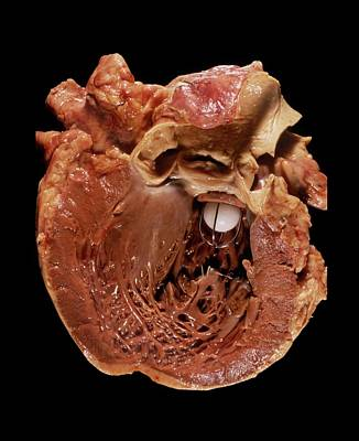 Heart Disease Photograph - Artificial Heart Valve by Pr. M. Forest - Cnri