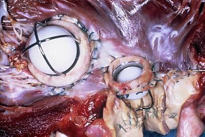 Heart Disease Photograph - Artificial Heart Valves by Pr. Ch. Cabrol - Cnri